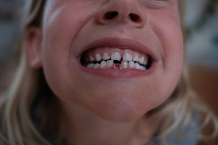 Close-up of gap toothed girl