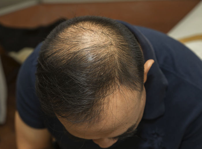 High angle view of man with receding hairline