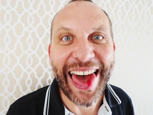 EyeEm Selects Portrait One Man Only Looking At Camera Headshot Front View EyeEmNewHere Blood Tongue Out Bitten Tongue Blue Eyes Freackshow Crazy Moments Olympus OM-D E-M5 Accidentally Red Teeth Lips Bearded Ups Ouch Laughing Neon Life Be. Ready.
