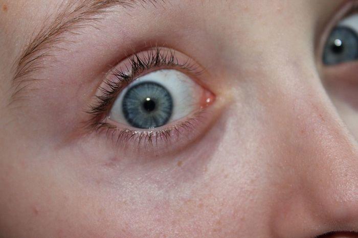 Blue Eyes Hi! Beautiful Eyes Who Me?
