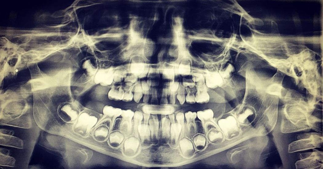 Young Adult Xray Teeth Front View One Person Human Body Part Healthcare And Medicine Close-up Indoors  People
