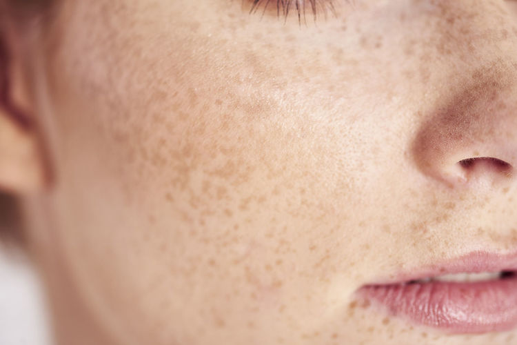Cropped image of woman with freckles on face