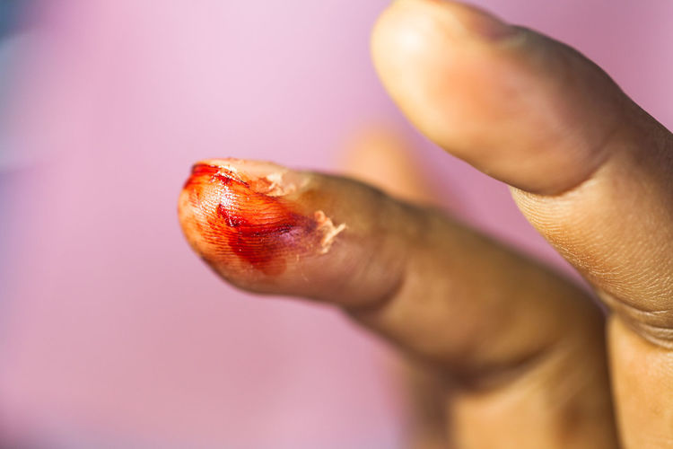Close-up of person with wound on finger over purple background