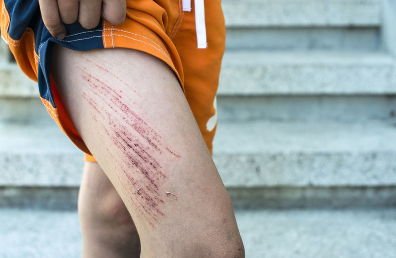 Midsection of person showing wounded thigh outdoors