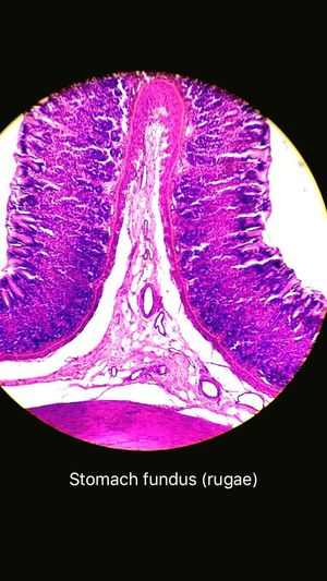 Pattern Pieces histology of stomach fundus rugae a pic from my anatomy lab