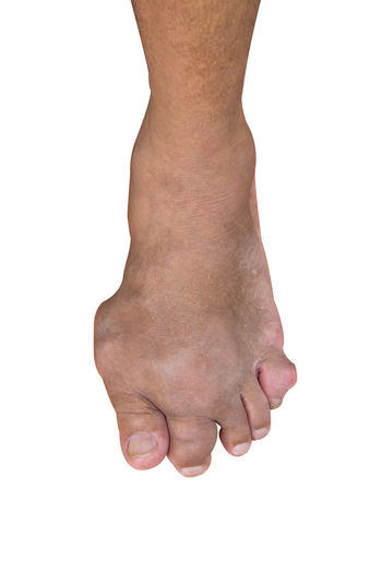 Foot disease or gout isolated or white background. Photo Clipping path. Foot Gout One Person Isolated White Background White Background Clipping Path Human Body Part Disease Human Foot Cut Out Close-up Adult Medicine Health Medical Toe Joint Care Injury Body Part Anatomy Uric Acid Bone  Podiatry People