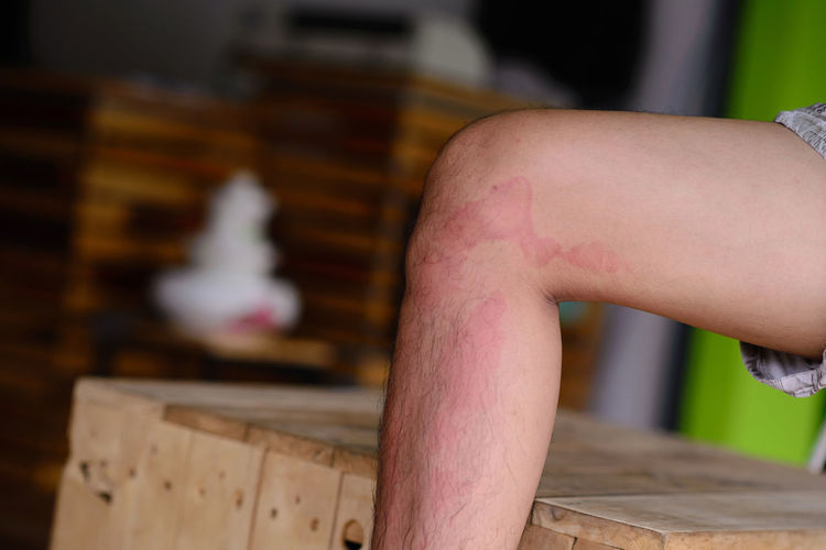 Close-up of allergy on leg
