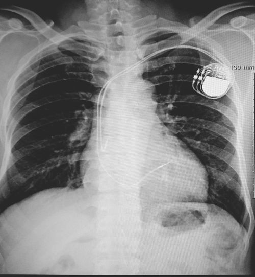 Pacemaker Cardiology Cardiopulmonary Resuscitation Defibrillator X-Ray Chest Human Body Part Rib