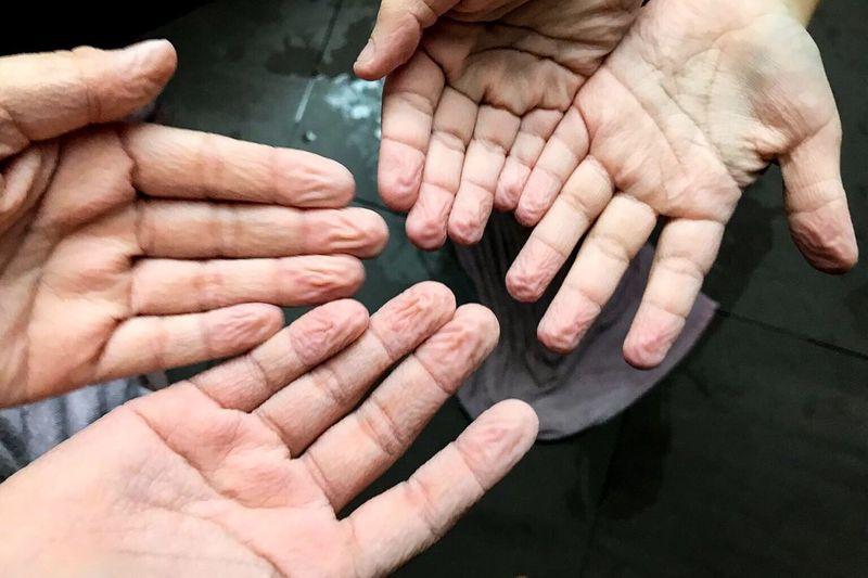 Wizened Human Hand Water Hand Finger Grumelig Aufgeweicht Grumpelig