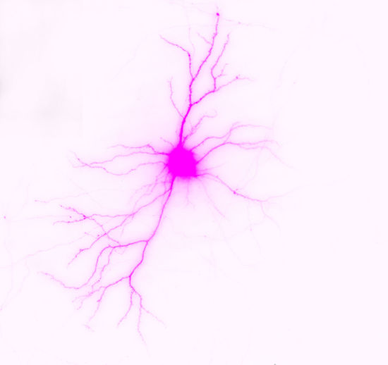 Neuron Pink Abstract Brain Cell Close-up Microscope Nature Neuron Pink Color White Background Science And Technology Science Perspectives On Nature