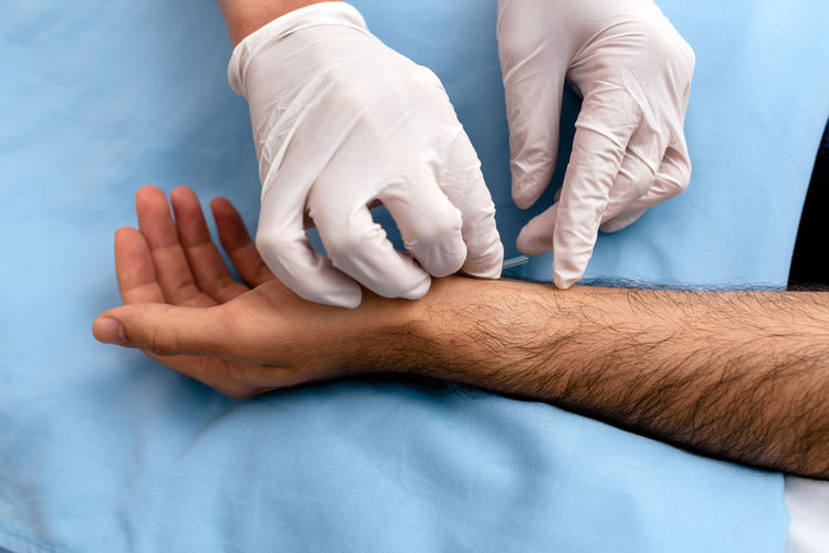 Midsection of doctor injecting acupuncture needle to patient