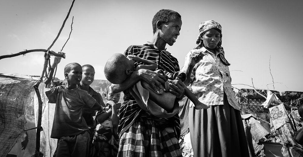Africa Blackandwhite Civil War Desperate Dying Fighting Hopeless Low Angle View Poverty Refugee Camp Sickness Somalia The Photojournalist - 2017 EyeEm Awards Warm EyeEmNewHere Bürgerkrieg Insecure Civil Disturbance Hostile Environment The Photojournalist