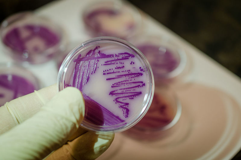 Close-Up Of Hand Holding Petri Dish At Laboratory