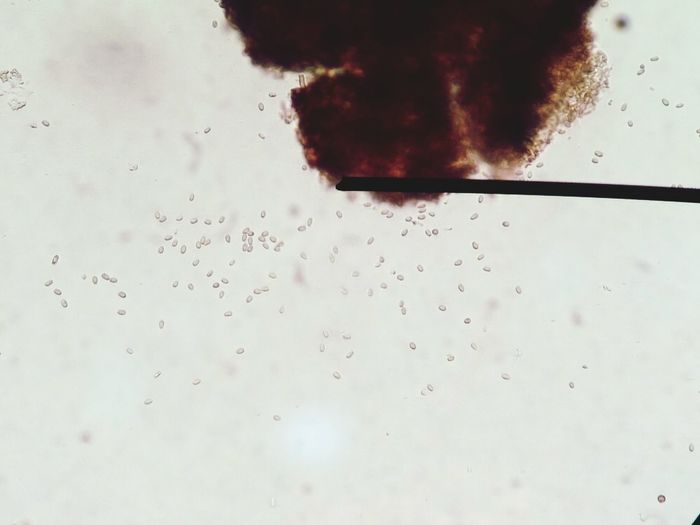 Colletotrichum Education First Biologylab BioTech Biology Biology Class Plant Plant Pathogen Plant Disease Diseased Plant