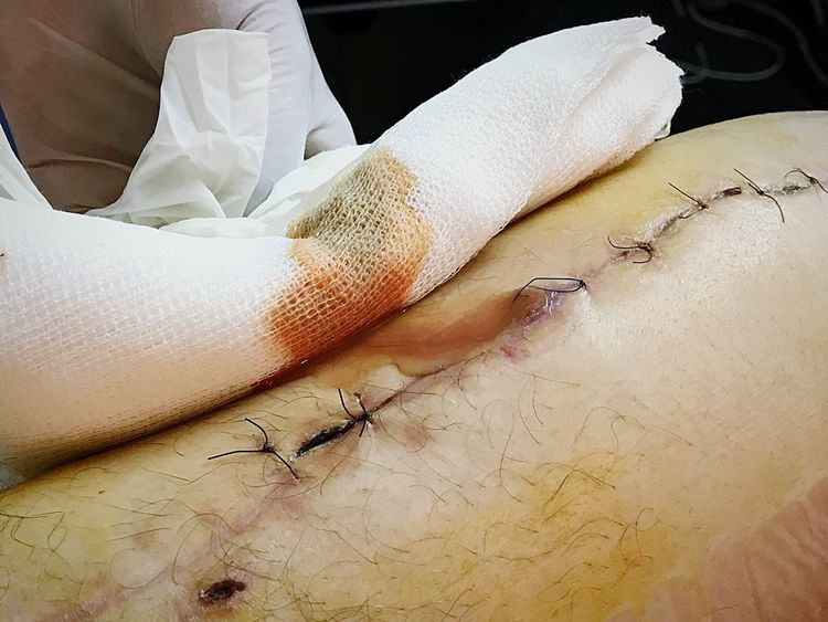 Wound Curation Infection Surgery Medical Exam Human Hand Medical Procedure Stiches Wound Indoors  Close-up Human Body Part Day People