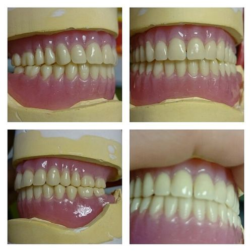 My first actual patient that I have seen all the way through the process. She's really happy with her new teeth in time for Xmas All she wanted for Christmas was literally her 2 front teeth.....and the other 26! 😁 Dentaltechnician Dentalschool Fullfullsetup Contouring Helpingsomeonetosmile Dentallabs Dentallife